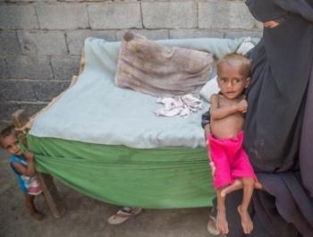 วิกฤตเยเมน : เด็ก 85,000 คน ตายจากการขาดสารอาหาร