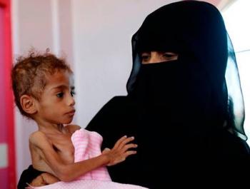 สุดสลด!สงครามเยเมนทำเด็กเสียชีวิตทุก10นาที